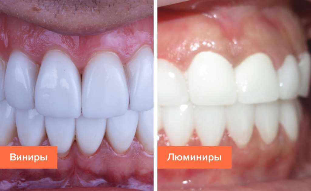 Люминиры и виниры на зубах