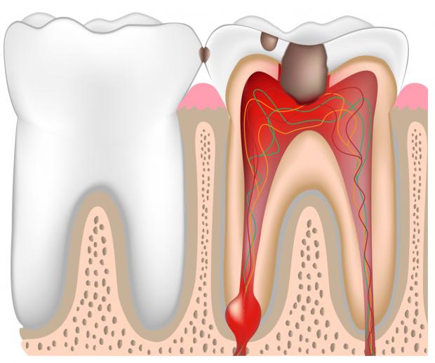 Лечение пульпита молочных зубов цена