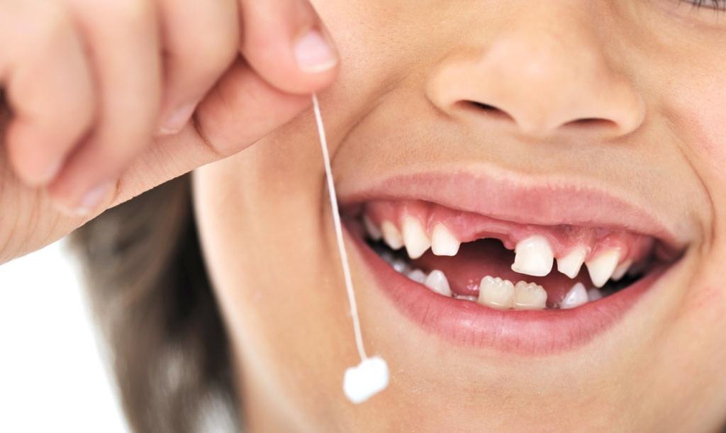 Как удалить молочные зубы у детей