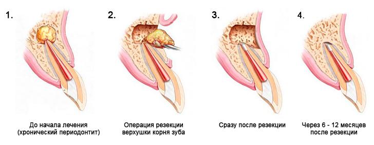 Свищ после резекции верхушки корня зуба
